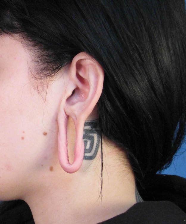ear_04