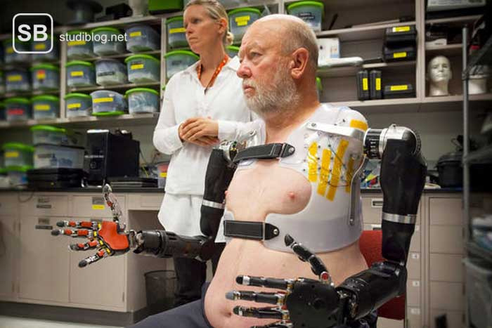 Mann mit beidseitiger Armprothese