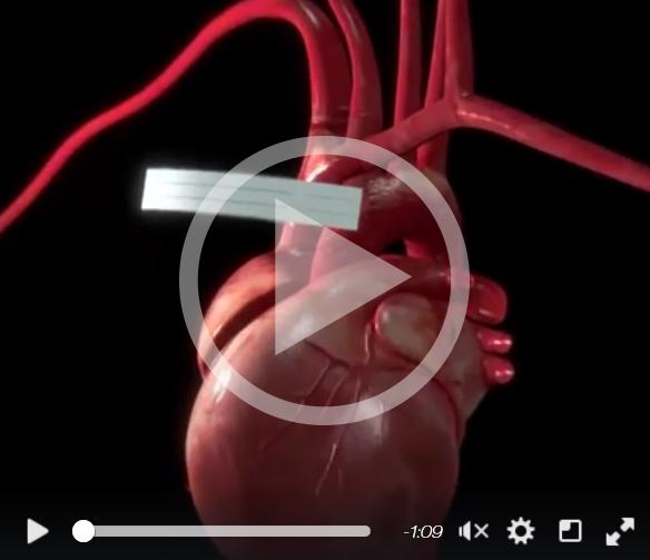 Herzschrittmacher-der-Zukunft-Magnetinduktion-studiblog