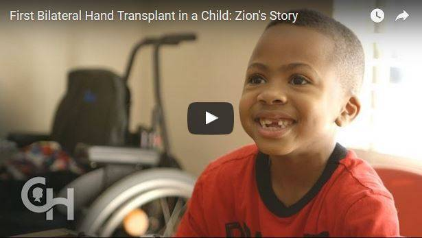 Transplantation zweier Hände von Harvey war erfolgreich